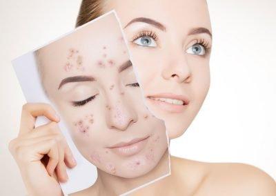 Acne and Accutane